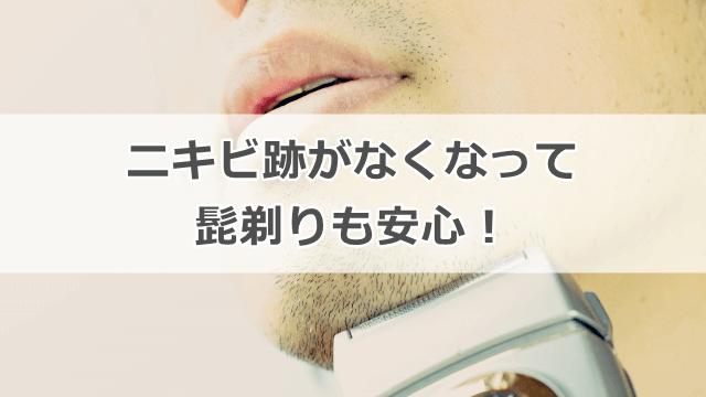 エクラシャルム 男 ニキビ跡